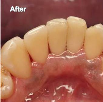 Dentist Colorado Springs – Cosmetic Dentist Colorado Springs